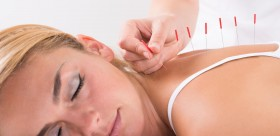 acupuncture-antistress
